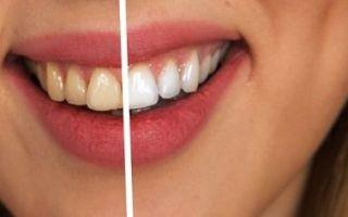 Влияние кофе на зубы
