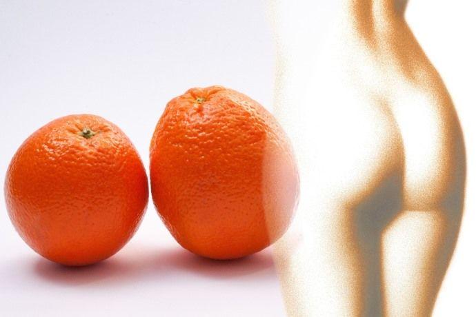 апельсиновая корка целлюлита