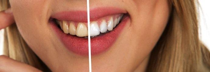 влияние кофе на цвет зубов